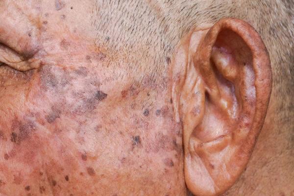 Actinic keratosis Cyprus Derma Clinic Yiannis Neophytou