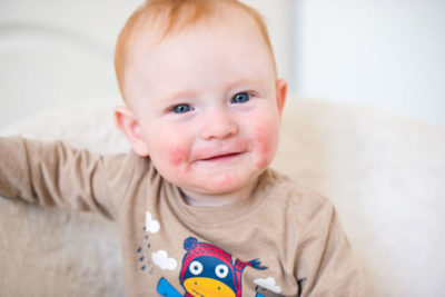 Atopic Dermatitis Children Cyprus Derma Clinic Yiannis Neophytou