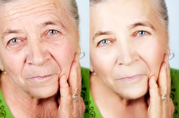 Chemical Peeling Wrinkles Cyprus Derma Clinic Yiannis Neophytou