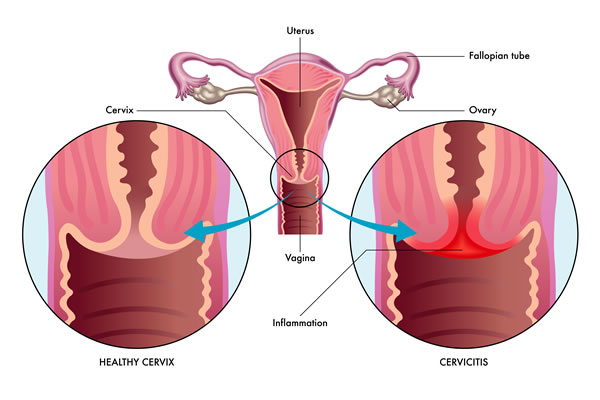 Chlamydial urethritis Cyprus Derma Clinic Yiannis Neophytou