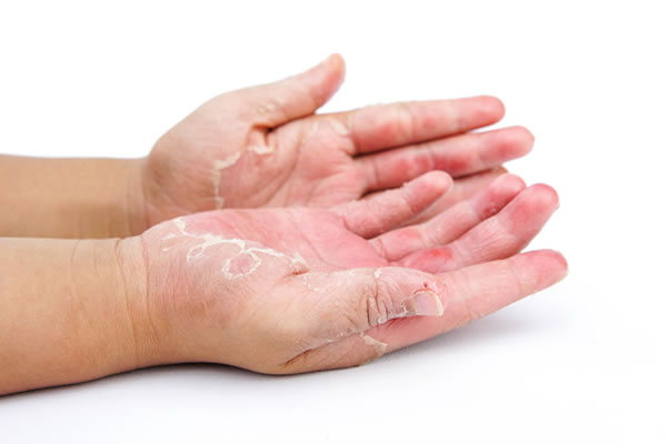 Contact Dermatitis Clinical Dermatology Cyprus Derma Clinic Yiannis Neofytou
