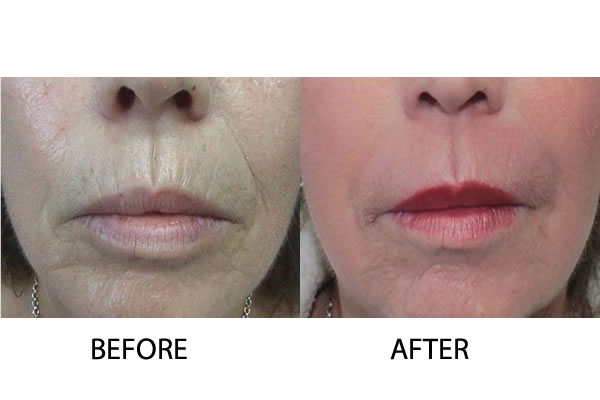 Hyaluronic Acid fillers Injectable Treatments Cosmetic Treatments Cyprus Derma Clinc Yiannis Neofytou