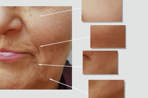 Hydroxyapatite Fillers Wrinkles Cyprus Derma Clinic Yiannis Neophytou