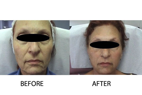 Hydroxyopatite fillers Injectable Treatments Cosmetic Treatments Cyprus Derma Clinc Yiannis Neofytou