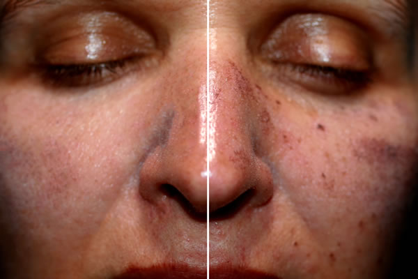 Laser Alexandrite Brown Spots Cyprus Derma Clinic Yiannis Neophytou