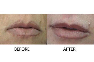Lip Augmentation Injectable Treatments Cosmetic Treatments Cyprus Derma Clinc Yiannis Neofytou