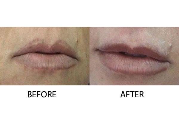 Lip Augmentation Injectable Treatments Cosmetic Treatments Cyprus Derma Clinc Yiannis Neofytou