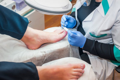 Nail surgery Cyprus Derma Clinic Yiannis Neophytou