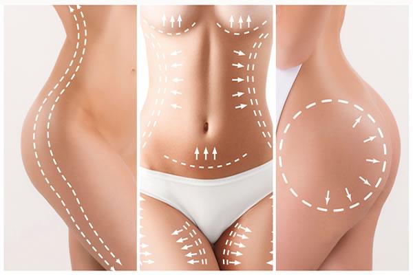 PDO Threads Body Skin Firming Cyprus Derma Clinic Yiannis Neophytou