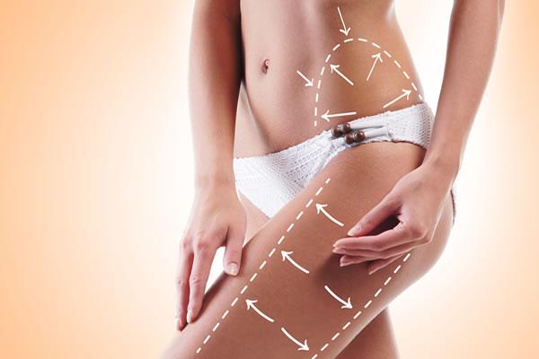 PDO Threads Cellulitis Cyprus Derma Clinic Yiannis Neophytou
