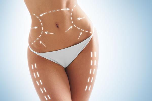 Sculptra Body Skin Firming Cyprus Derma Clinic Yiannis Neophytou