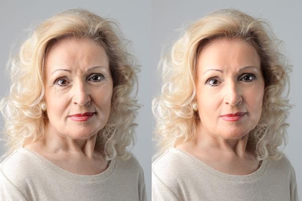 Sculptra Wrinkles Cyprus Derma Clinic Yiannis Neophytou