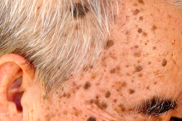 Seborrheic keratosis Cyprus Derma Clinic Yiannis Neophytou.fw