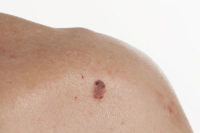 Squamous cell carcinoma Cyprus Derma Clinic Yiannis Neophytou