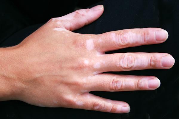 Vitiligo Cyprus Derma Clinic Yiannis Neophytou
