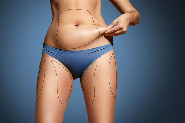 What is Localized Fat Cyprus Derma Clinic Yiannis Neophytou