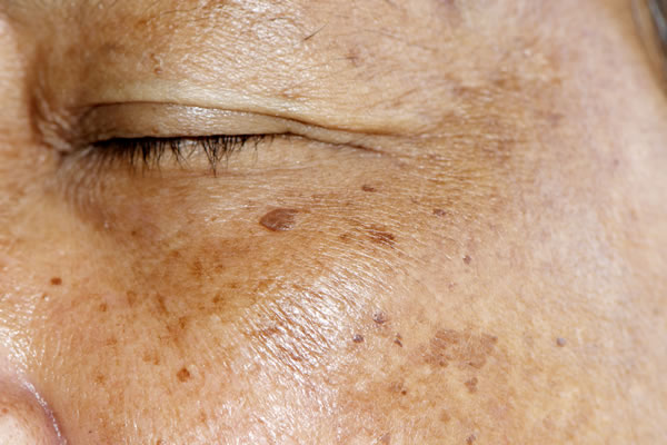 What is brown spots Cyprus Derma Clinic Yiannis Neophytou