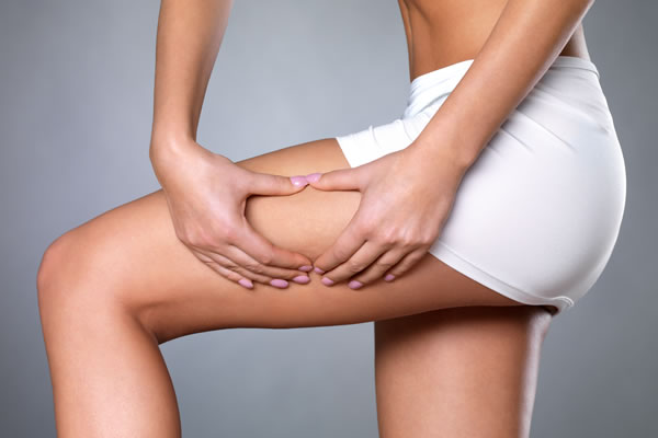 What is cellulitis Cyprus Derma Clinic Yiannis Neophytou