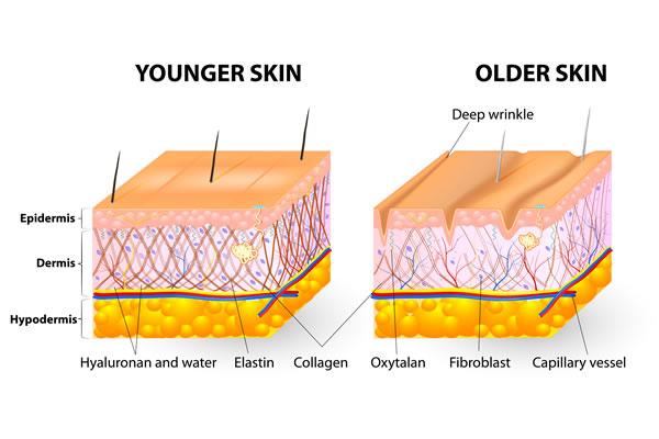 What is skin laxity Body Skin Firming Cyprus Derma Clinic Yiannis Neophytou