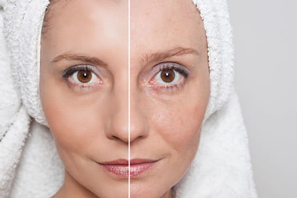 What is skin laxity - Facial Skin Tightening Firming Cyprus Derma Clinic Yiannis Neophytou