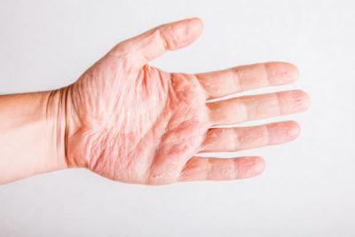 Atopic Dermatitis - Eczema Dermatological Diseases Cyprus Derma Clinic Dr Yiannis Neofytou